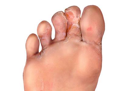 athletes-foot-2